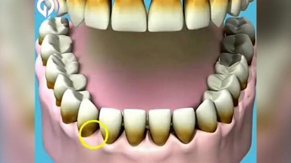 سیگار با دهان و دندان شما چه می کند؟